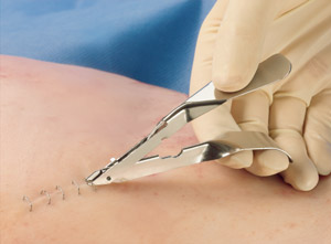 Skin Staple Remover | Medical Supermarket