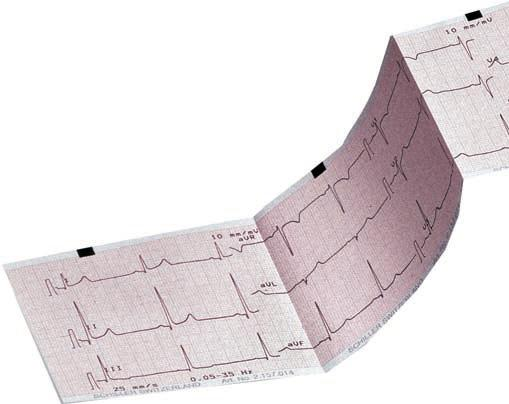 Compatible Hewlett Packard/Phillips Pagewriter 100/200/300 ECG Paper | Medical Supermarket