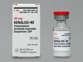 [AMB] (POM) Kenalog - 40mg/1ml - 1ml Vial - (Pack 5) | Medical Supermarket