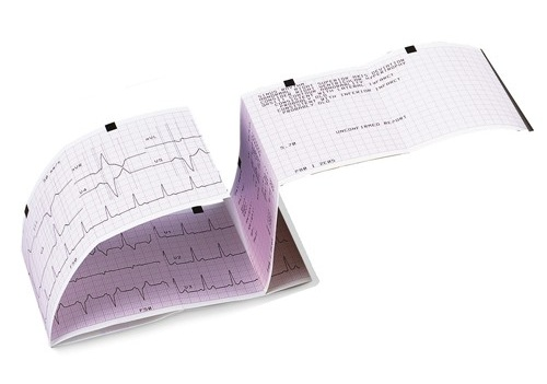 Seca ECG Paper for CT3000 (CT463Z) | Medical Supermarket