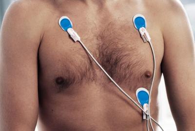 Ambu Blue Sensor T electrodes